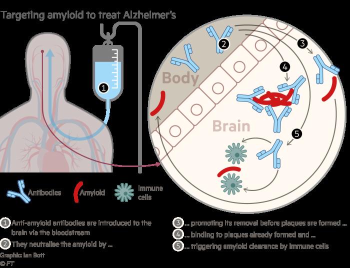 Information graphics explaining how amyloid targets Alzheimer's disease treatment