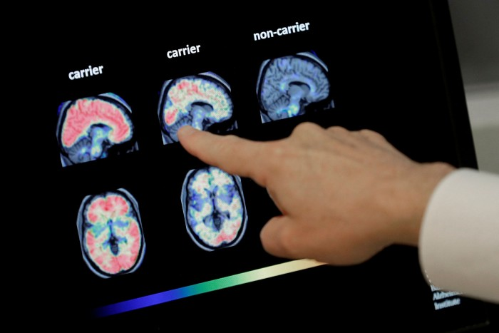 A doctor points to a brain scan. To be eligible for aducanumab, a patient must undergo a PET scan or the more invasive, but typically less expensive, lumbar tap
