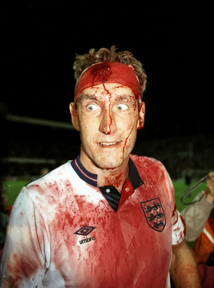 A bloodied Terry Butcher after the 1989 World Cup qualifier against Sweden